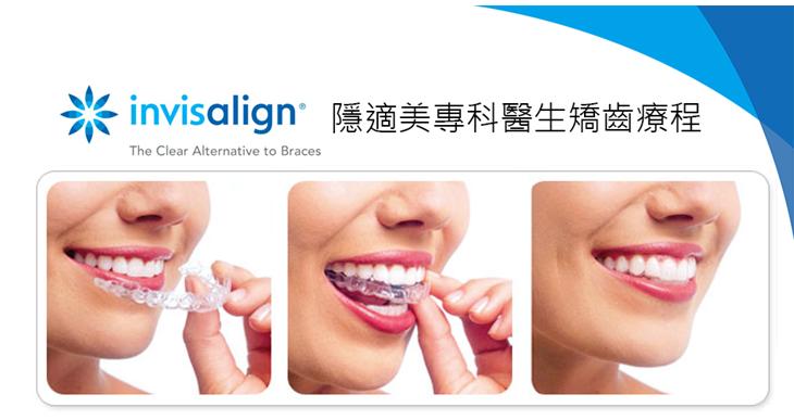隱適美隱形牙套矯正流程