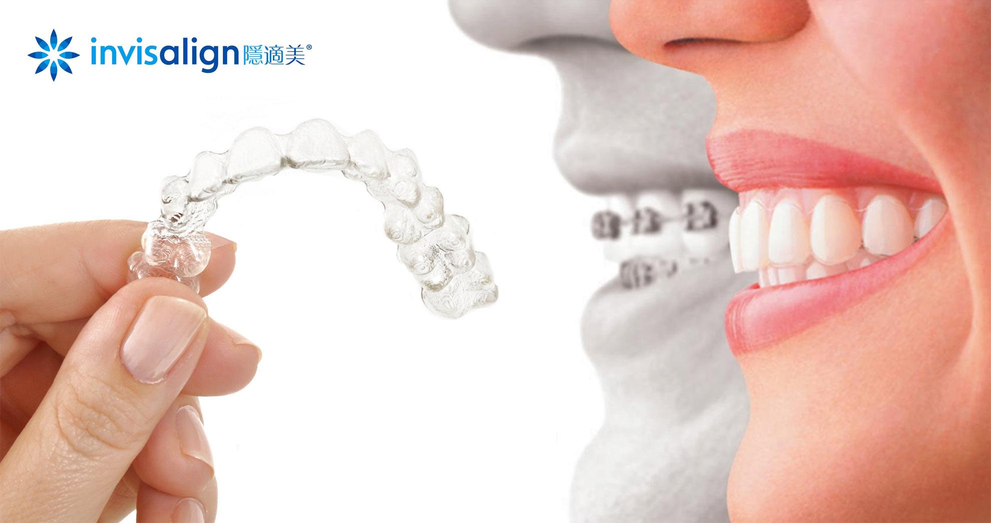 隱適美隱形牙套與傳統牙套